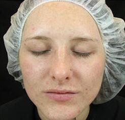 Na acne behandeling