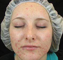 Voor acne behandeling
